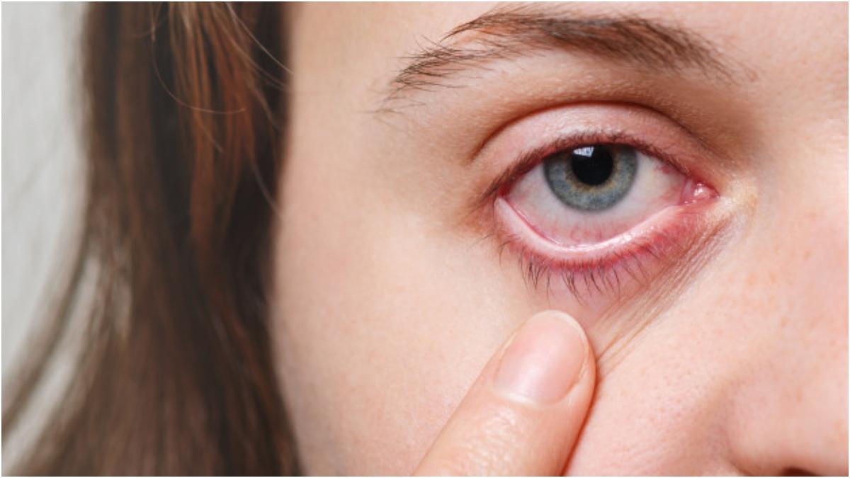 أعراض الفطر الأسود وطرق علاجه