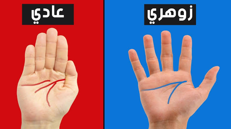 خط اليدين العرضيفي الانسان الزهري