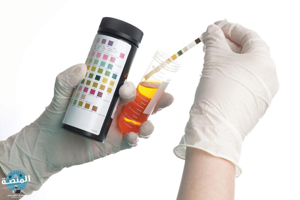 تحليل البول السكري الكاذب