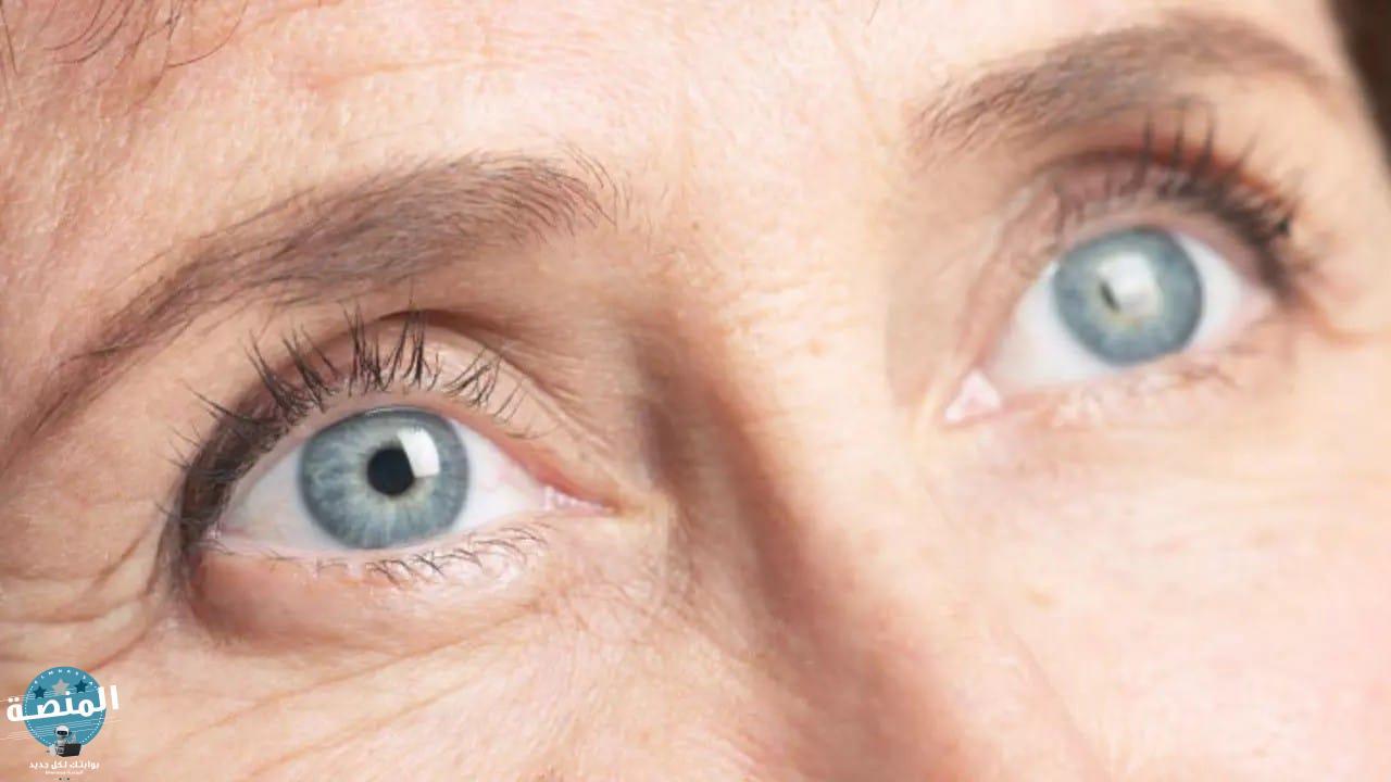 أسباب المياه الزرقاء في العين