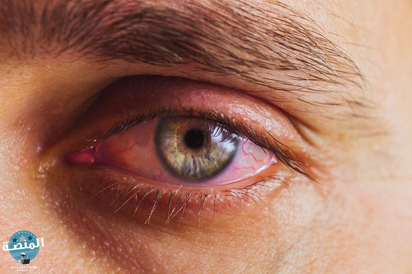 ما هو التنكس البقعي للعين