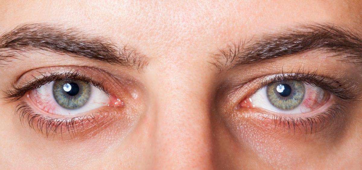 علاج التهاب ملتحمة العين البكتيري