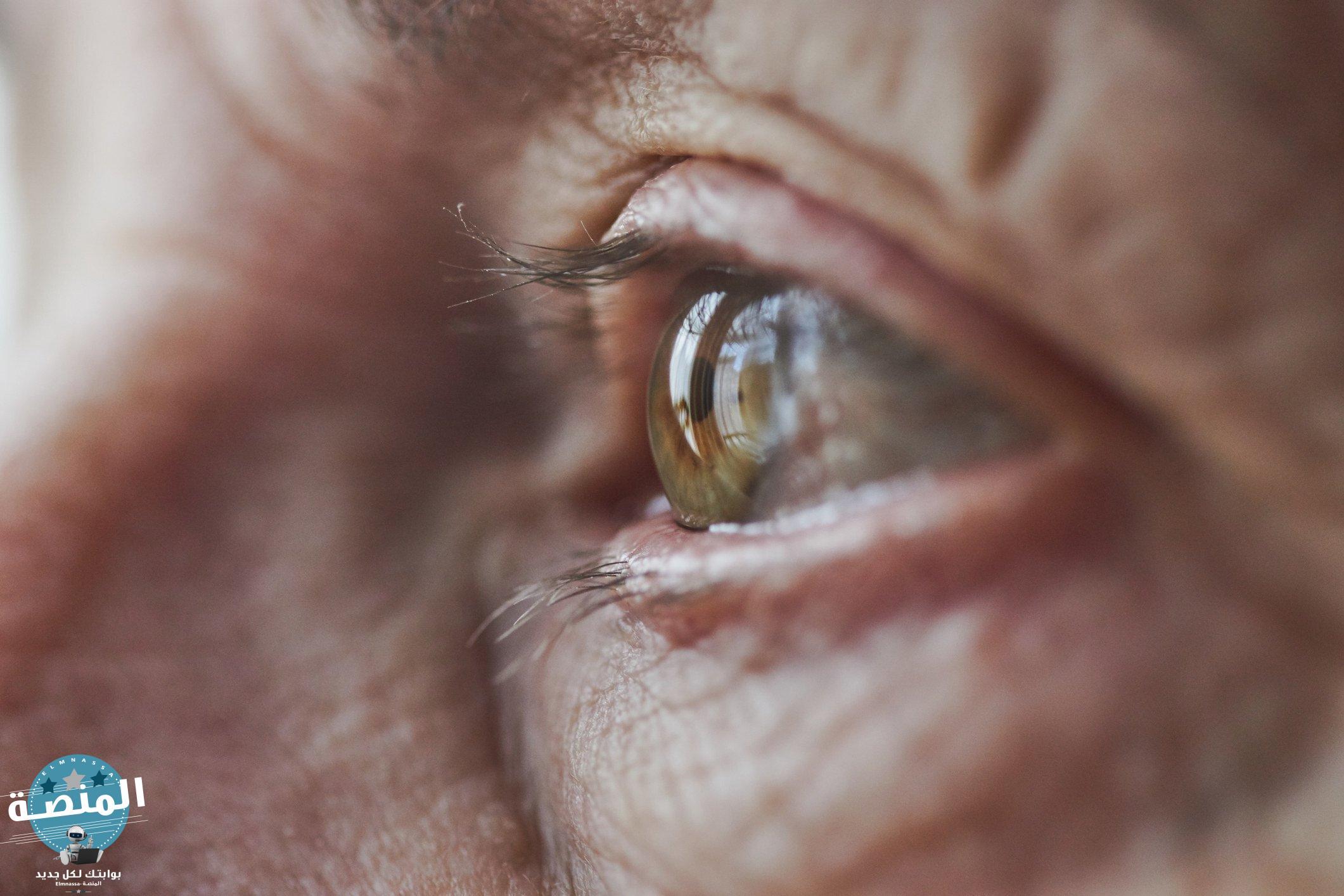 أنواع التنكس البقعي للعين