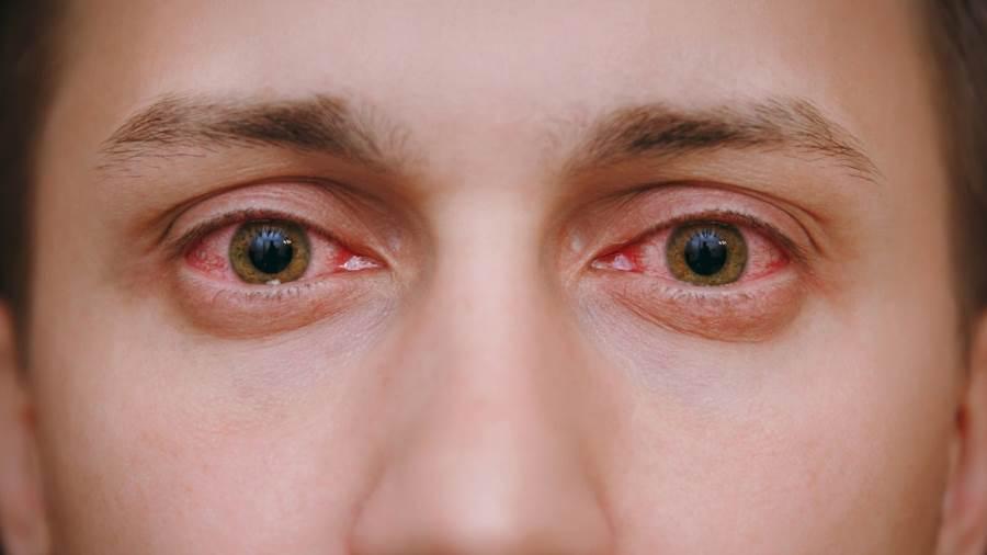علاج التهاب الملتحمة التحسسي