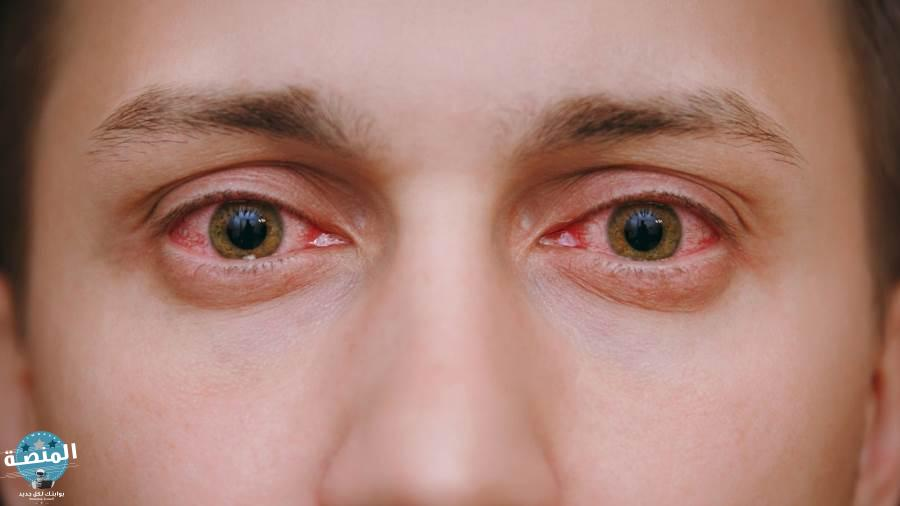 التهاب الملتحمة