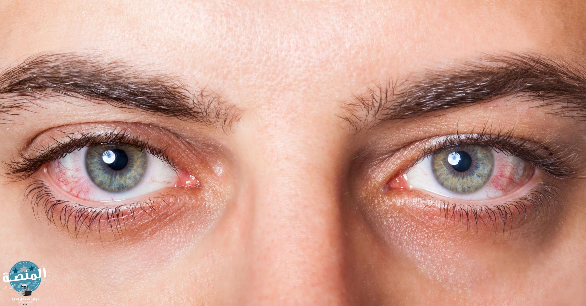 ما هو جفاف العين