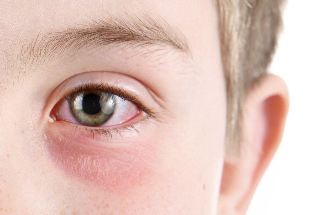 علاج التهاب العين الفيروس