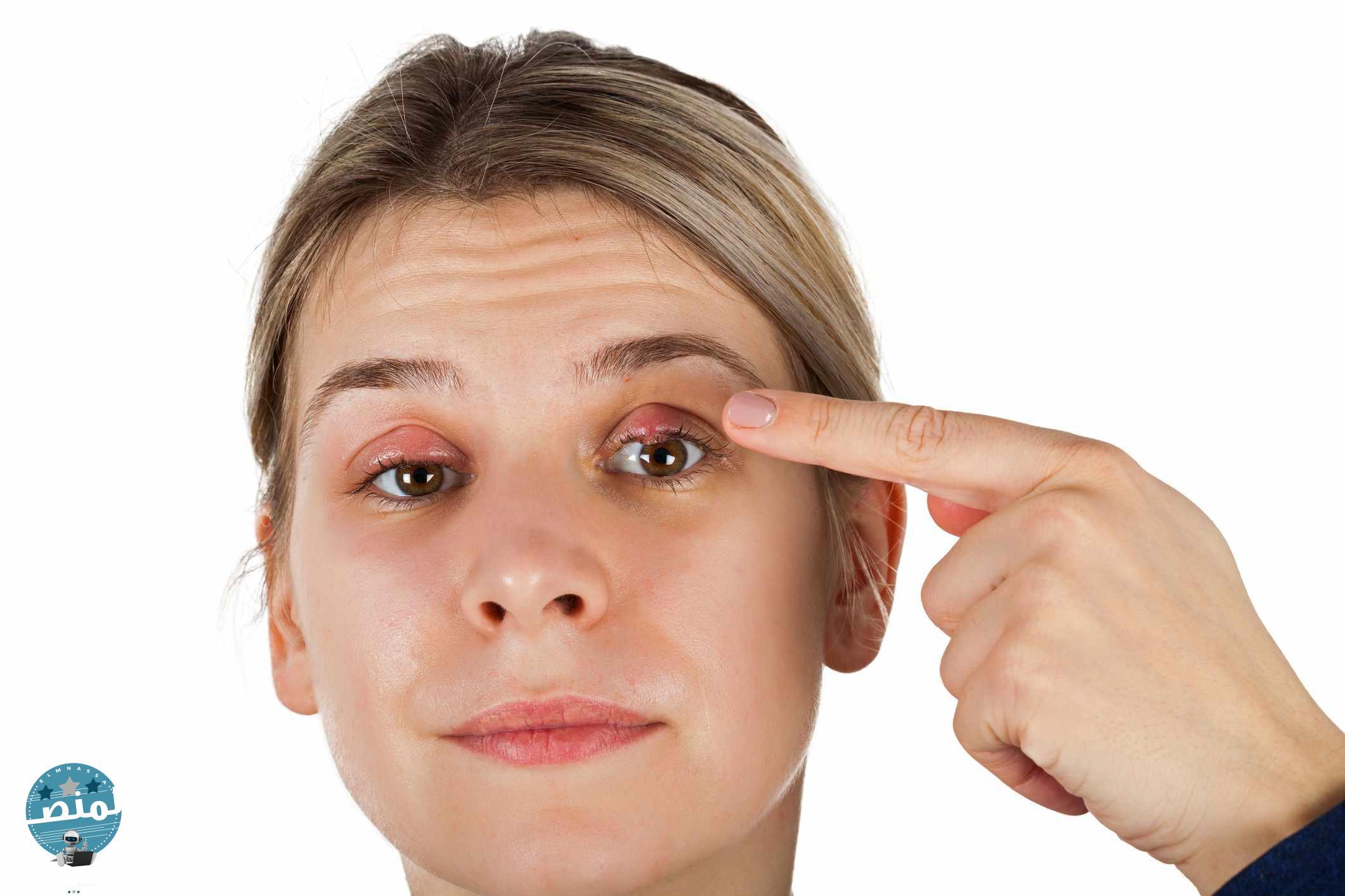 أعراض دمل العين