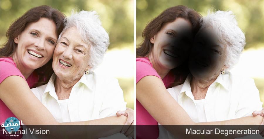 أعراض التنكس البقعي
