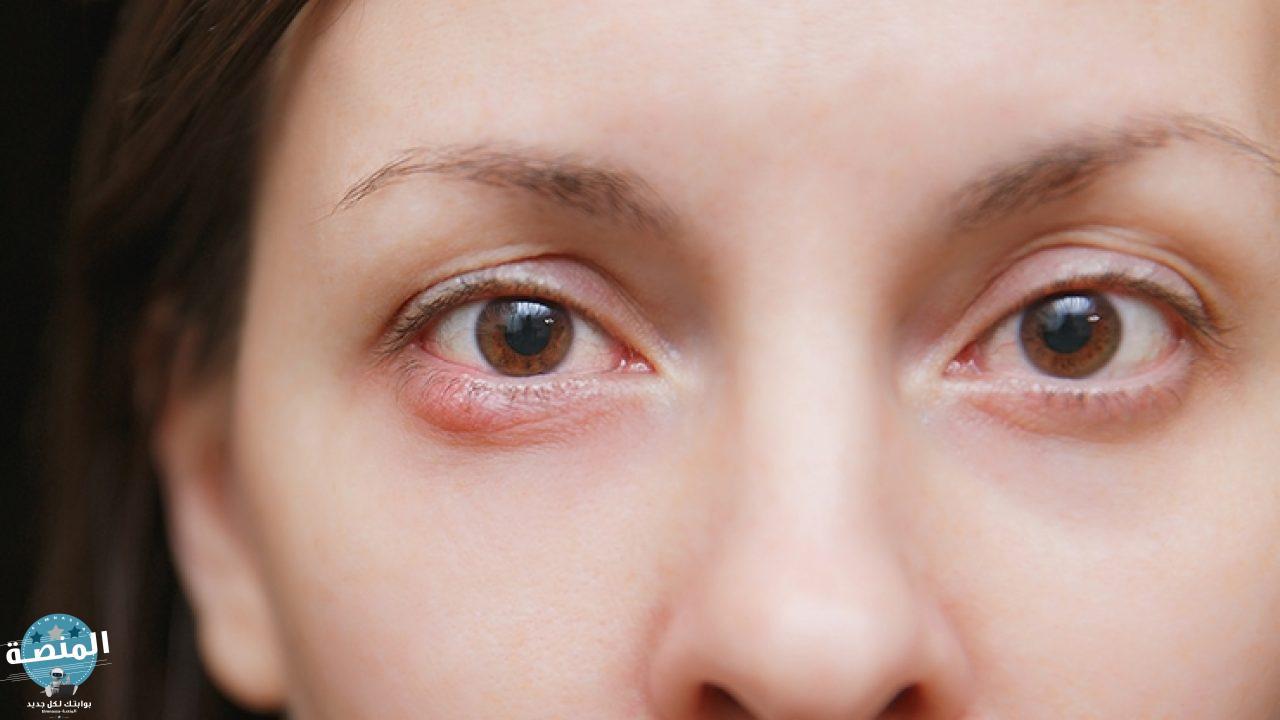 علاج دمل العين وأسباب الاصابة به