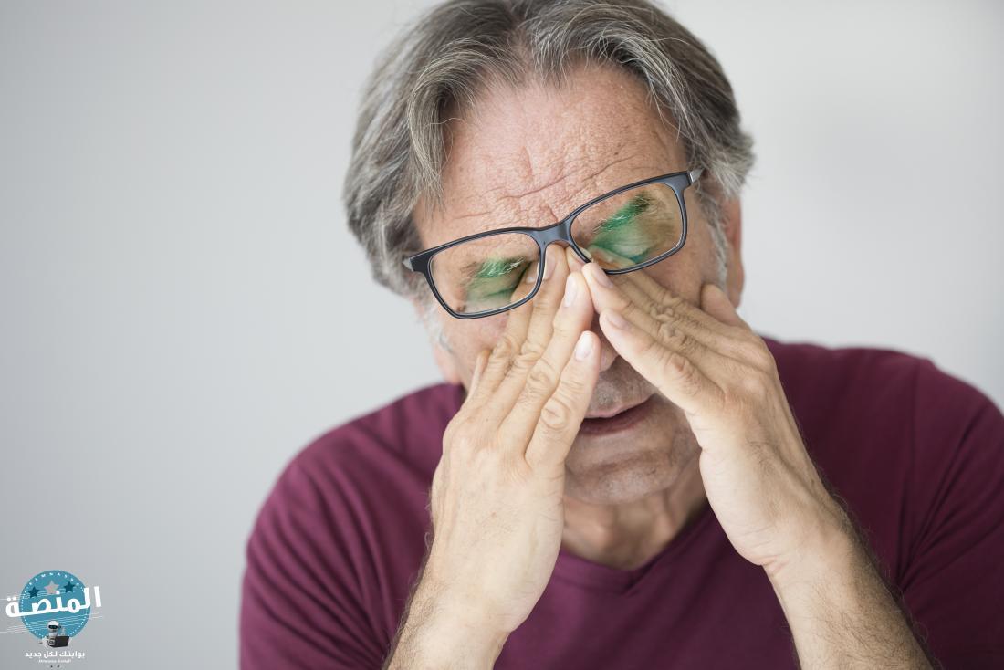 ما هو علاج جفاف العين