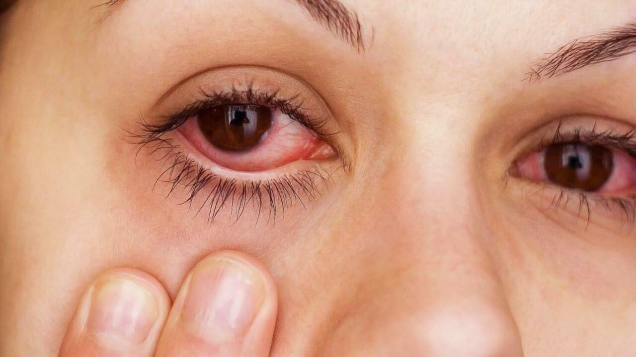 ما هو التهاب الملتحمة؟
