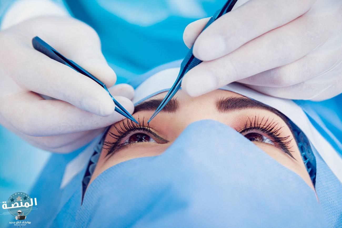 كيف تتم جراحة دمل العين