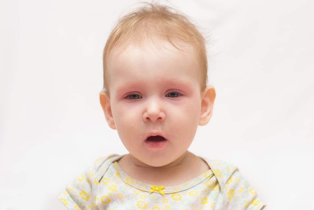 ما هي الملتحمة: ما هو التهاب الملتحمة