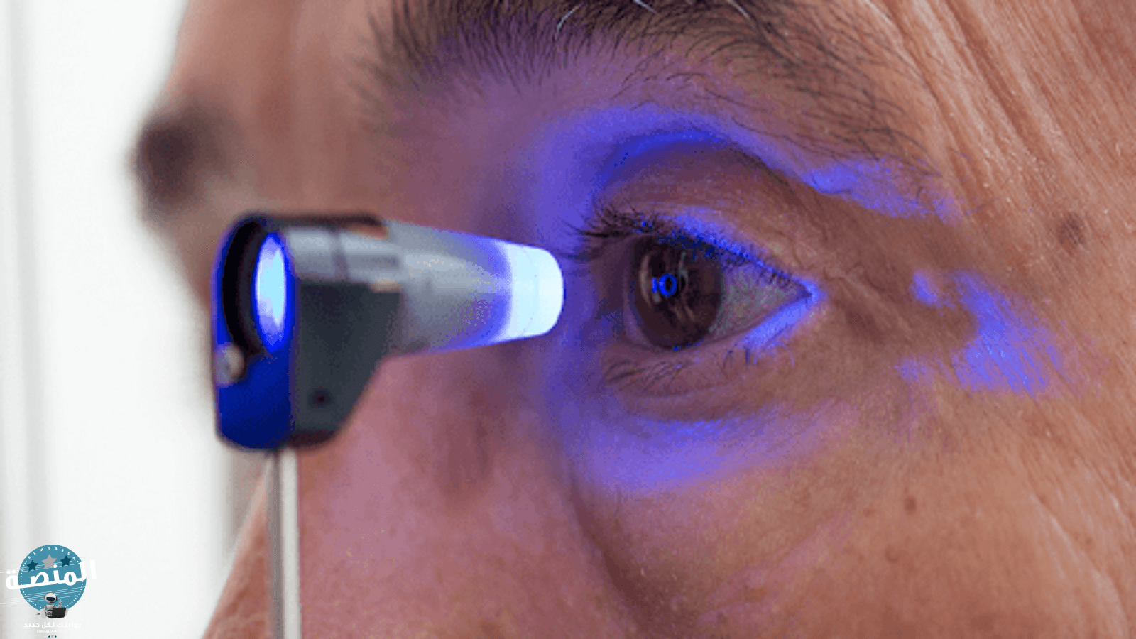 علاج المياه الزرقاء في العين