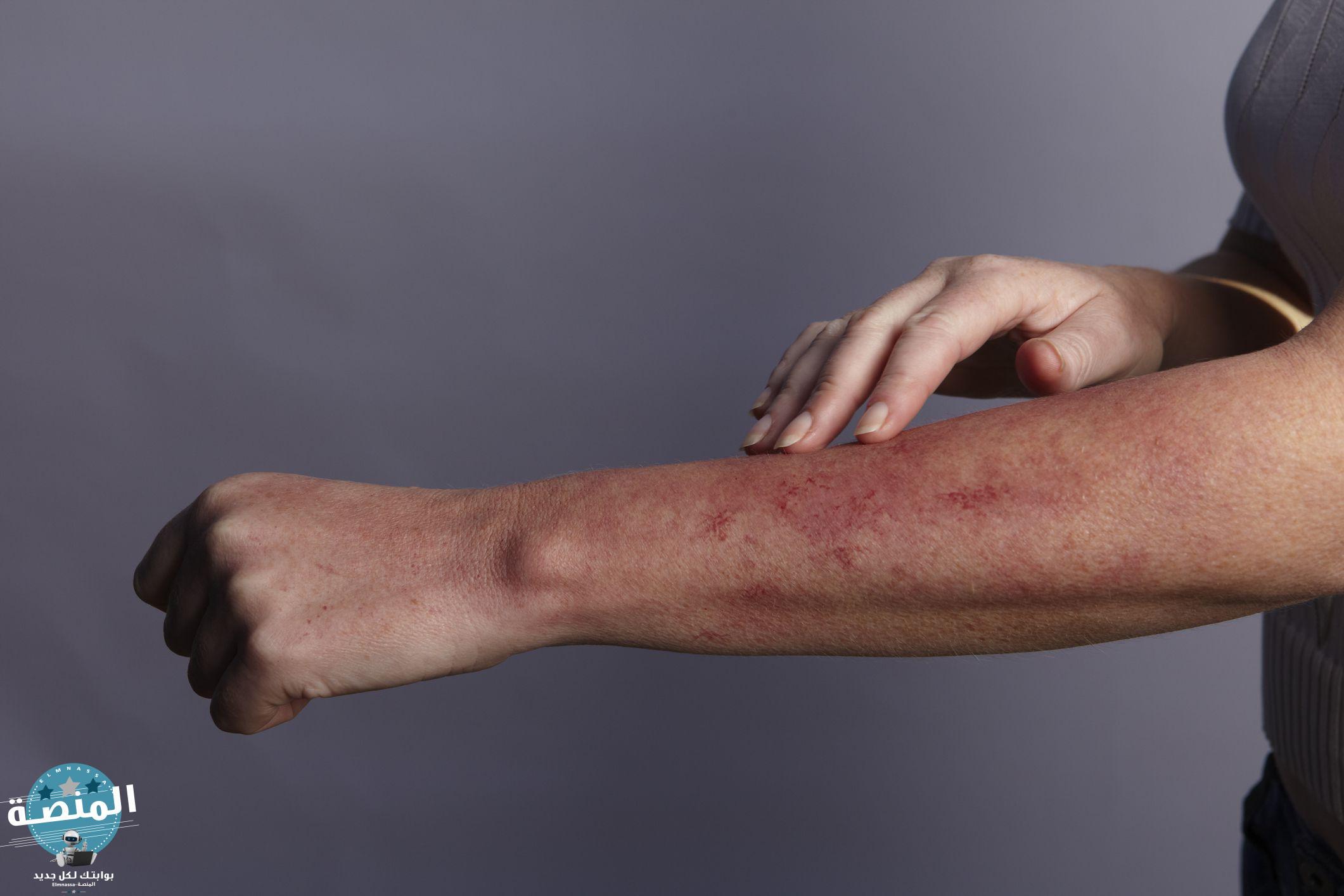 الطفح الجلدي لمرض السكري