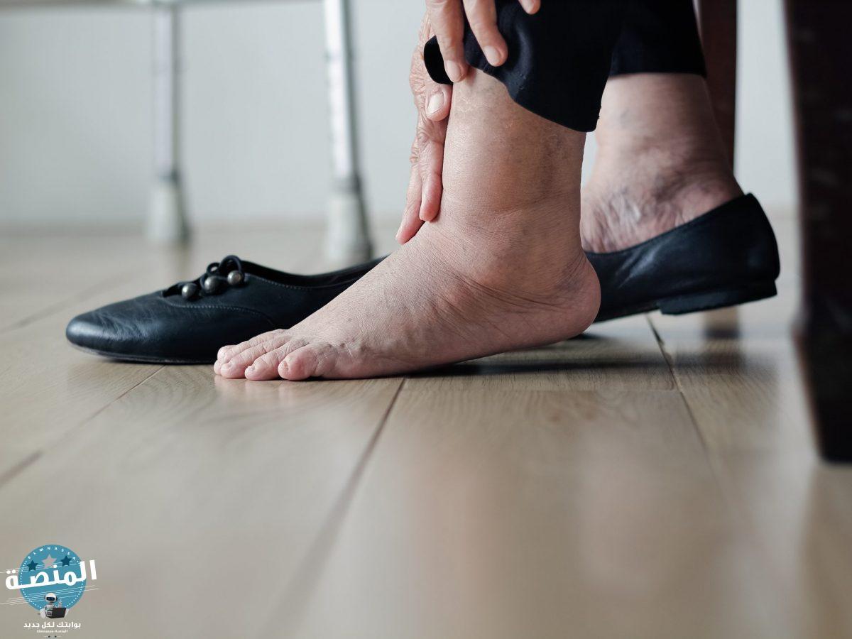 الحذاء المناسب لمرضي السكري