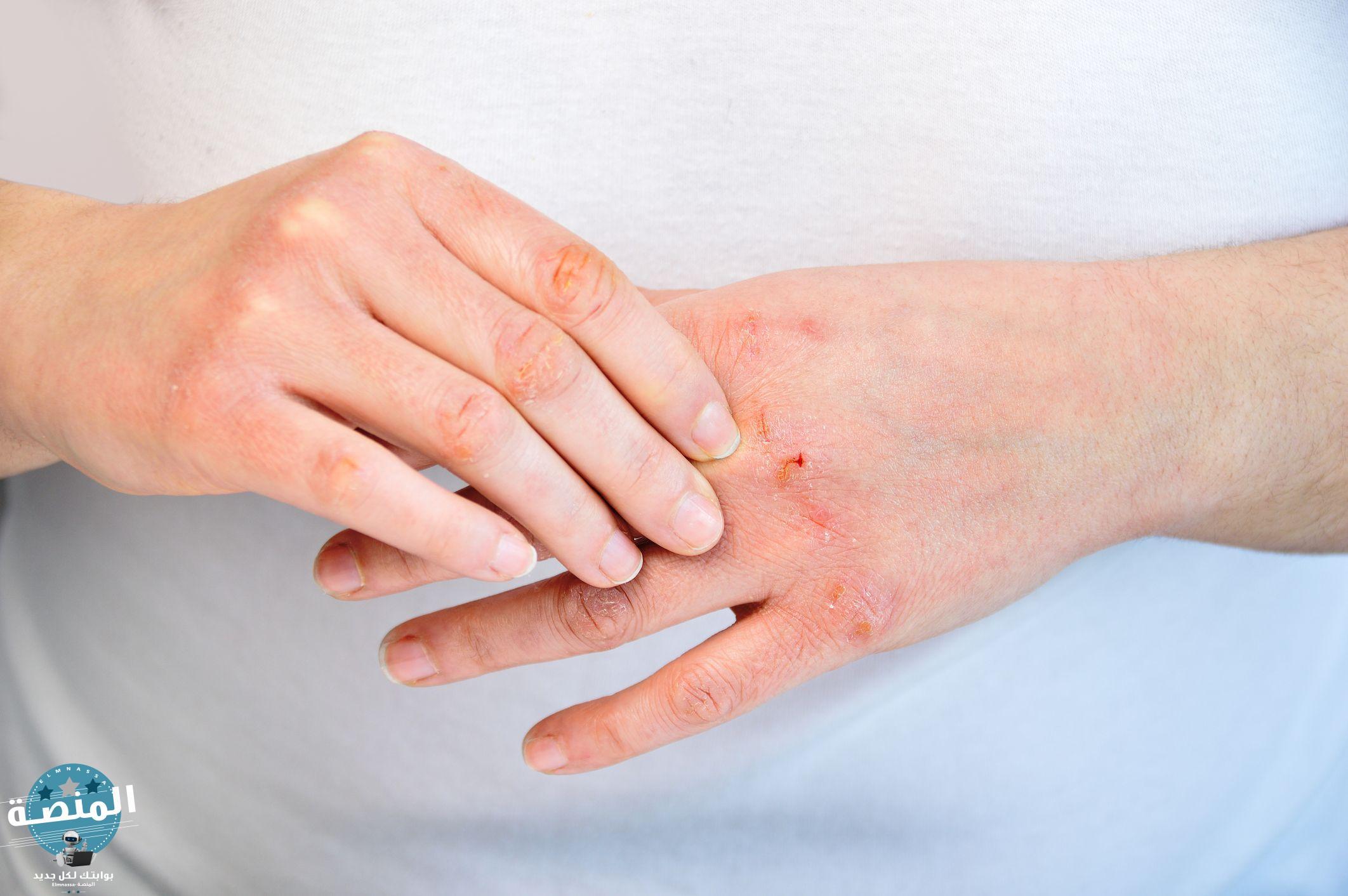 أهم نصائح علاج الجلد السكري