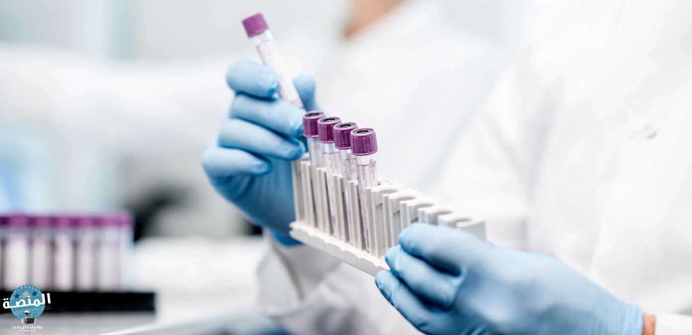 خطوات اختبار الهيموجلوبين HbA1c