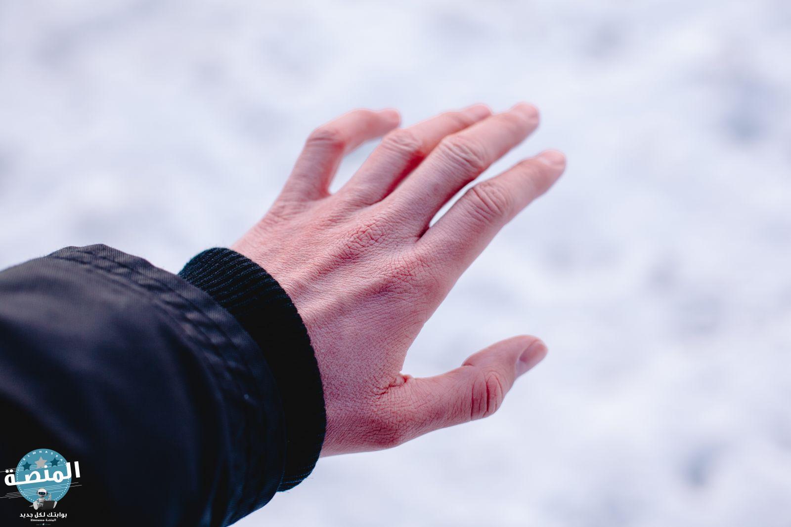 قضمة الصقيع أو عضة البرد